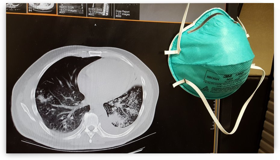 TB CT w mask by Creative Endeavors - Steven Oscherwitz