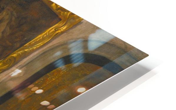 The Doctor's Visit 1660 Impression de sublimation métal HD