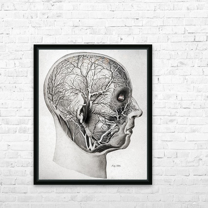 Nerves and Blood Vessels of the Head HD Sublimation Metal print with Decorating Float Frame (BOX)